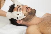 cirugia estetica hombre operacion parpado caido