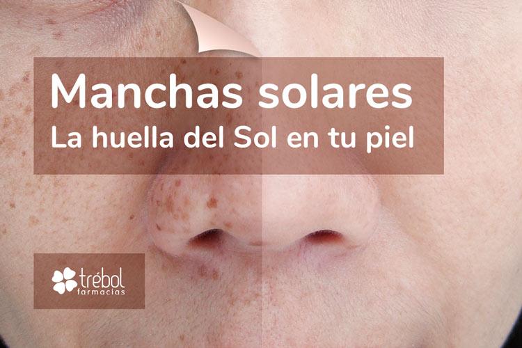 Farmacias Trébol aconseja cómo tratar las manchas faciales